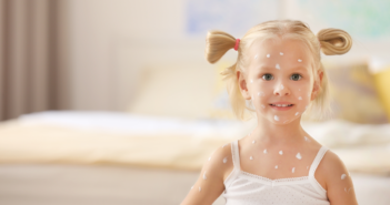 Пик на варицела – лечение и превенция на усложнения