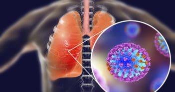 усложнения след грип