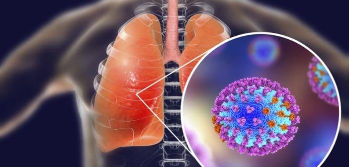 Как да избегнем появата на усложнения след грип?